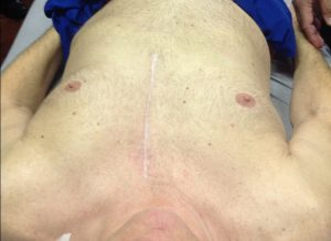 training 4.23.16 scar tissue